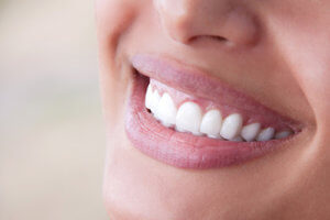 beautiful smile is the result of restorative dentistry
